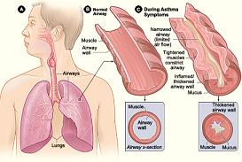 obat herbal sesak nafas dan batuk
