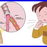 Resep Obat Batuk Berdahak Anak 1 Tahun Yang Ampuh