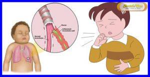 Obat Batuk Berdahak Anak 1 Tahun