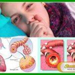 7 Cara Cepat Menghilangkan Batuk Pilek dengan Herbal Berkhasiat