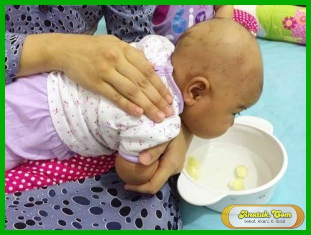 menyembuhkan batuk anak