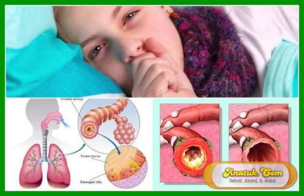 mengatasi flu dan batuk